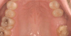 Dental Implant - Before Treatment