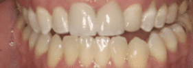 Orthodontic Whitening - After Treatment