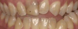 Orthodontic Whitening - Before Treatment