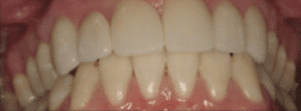 Porcelain Crown - After Treatment