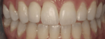Dental Surgery - After Treatment
