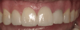 Dental Veneer - After