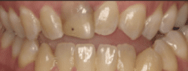 Dental Veneer - Before Treatment