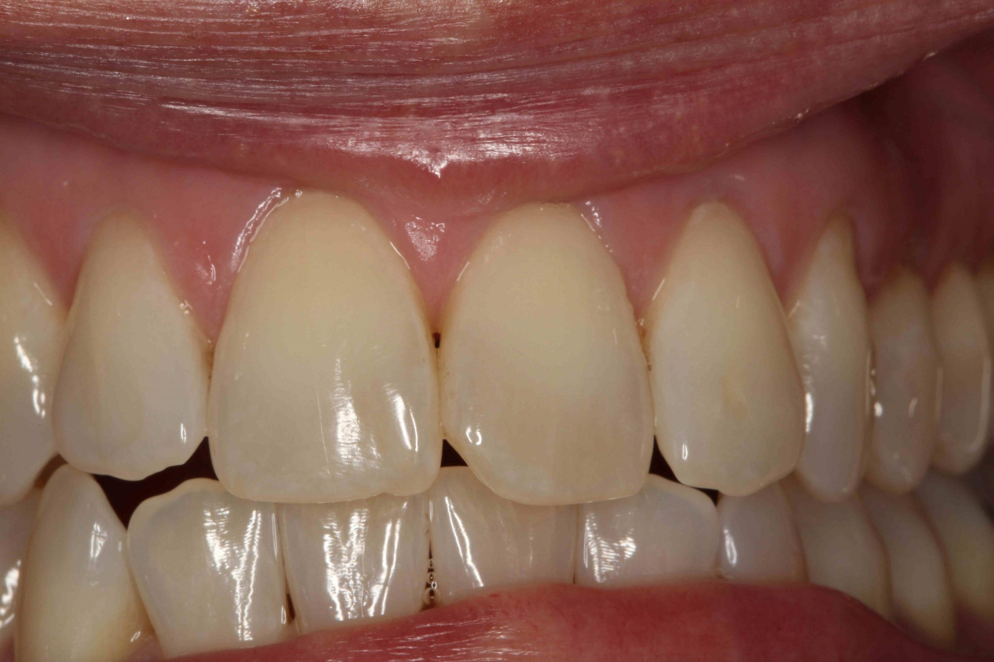 Dental Implant - After Treatment